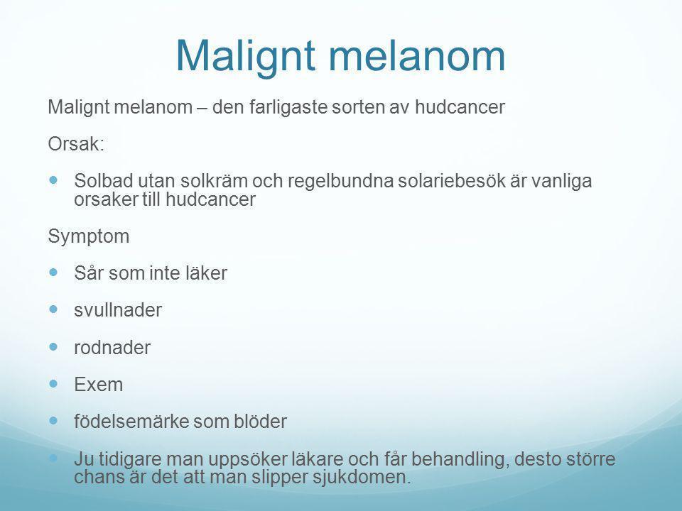 Malignt melanom Malignt melanom – den farligaste sorten av hudcancer