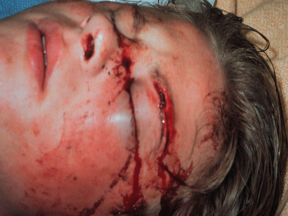 Andra sidan ser värre ut vilket den inte behöver vara bara för att det blöder, men i det här fallet så har han en näsfraktur som måste reponeras vilket vi gör nere på akutmottagningen.