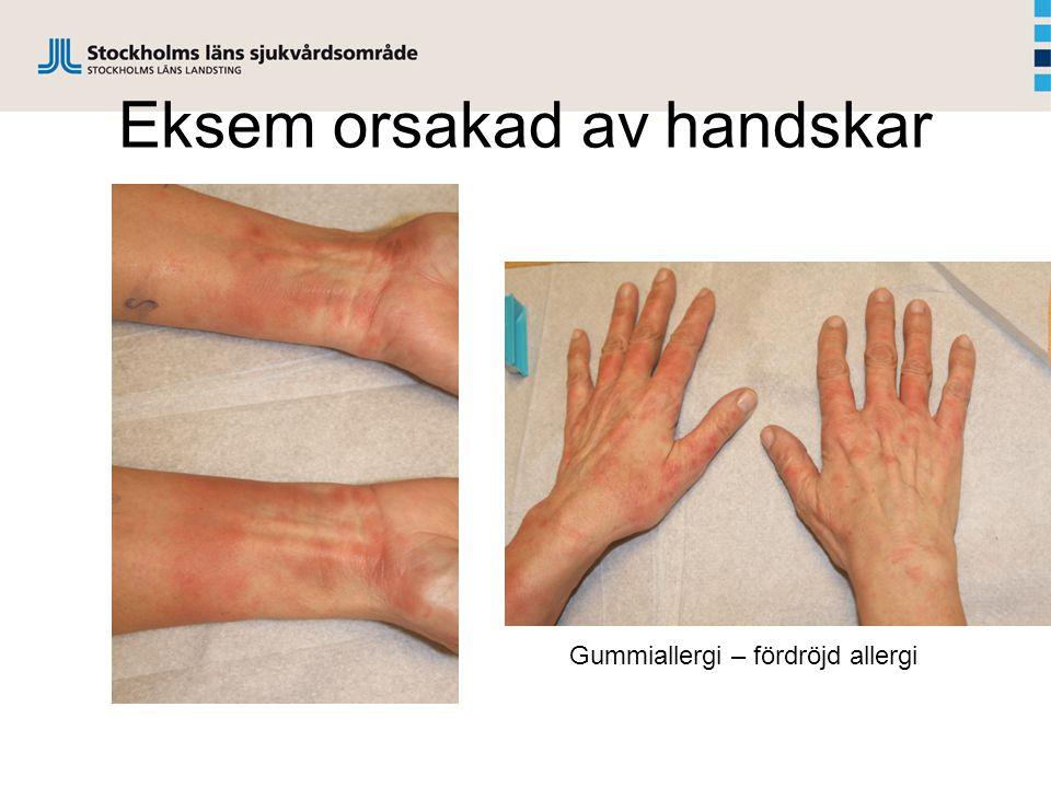 Eksem orsakad av handskar