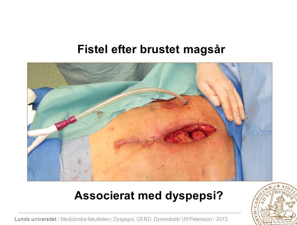Fistel efter brustet magsår Associerat med dyspepsi