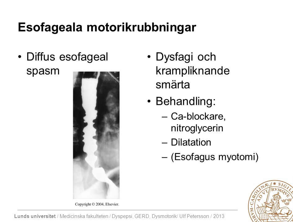 Esofageala motorikrubbningar