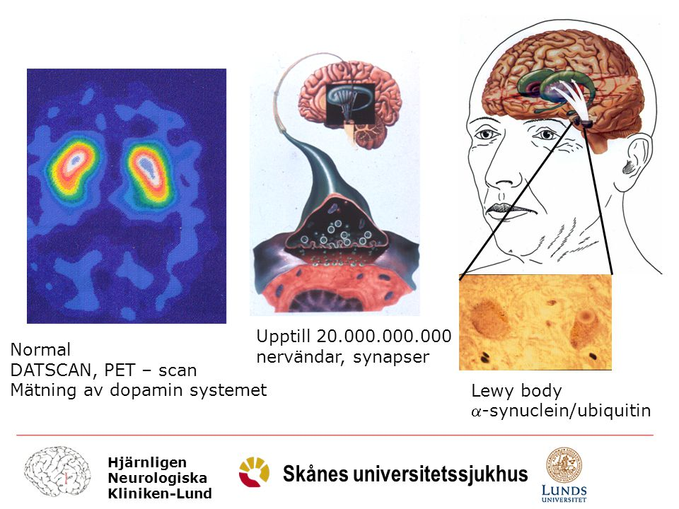 Upptill 20.000.000.000 nervändar, synapser. Normal. DATSCAN, PET – scan. Mätning av dopamin systemet.