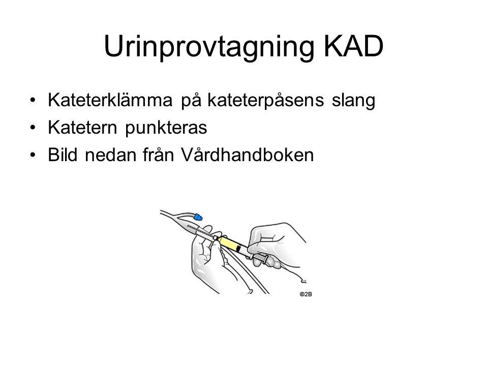 Urinprovtagning KAD Kateterklämma på kateterpåsens slang
