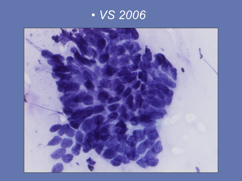 VS 2006