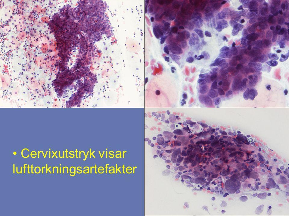 Cervixutstryk visar lufttorkningsartefakter