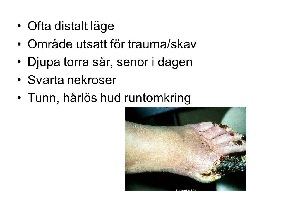 Ofta distalt läge Område utsatt för trauma/skav. Djupa torra sår, senor i dagen. Svarta nekroser.