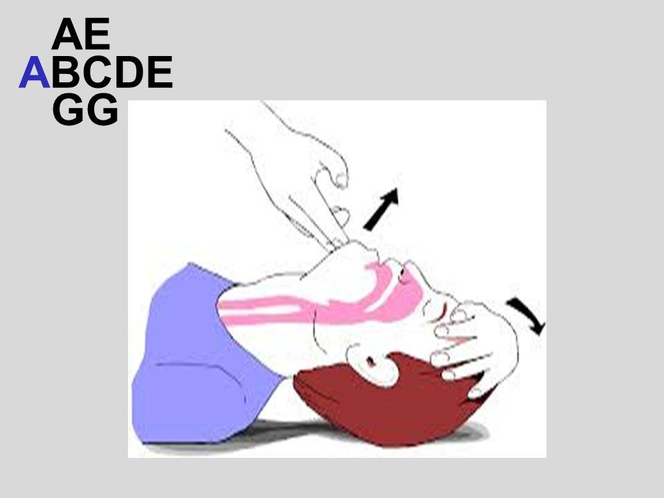 AE ABCDE GG
