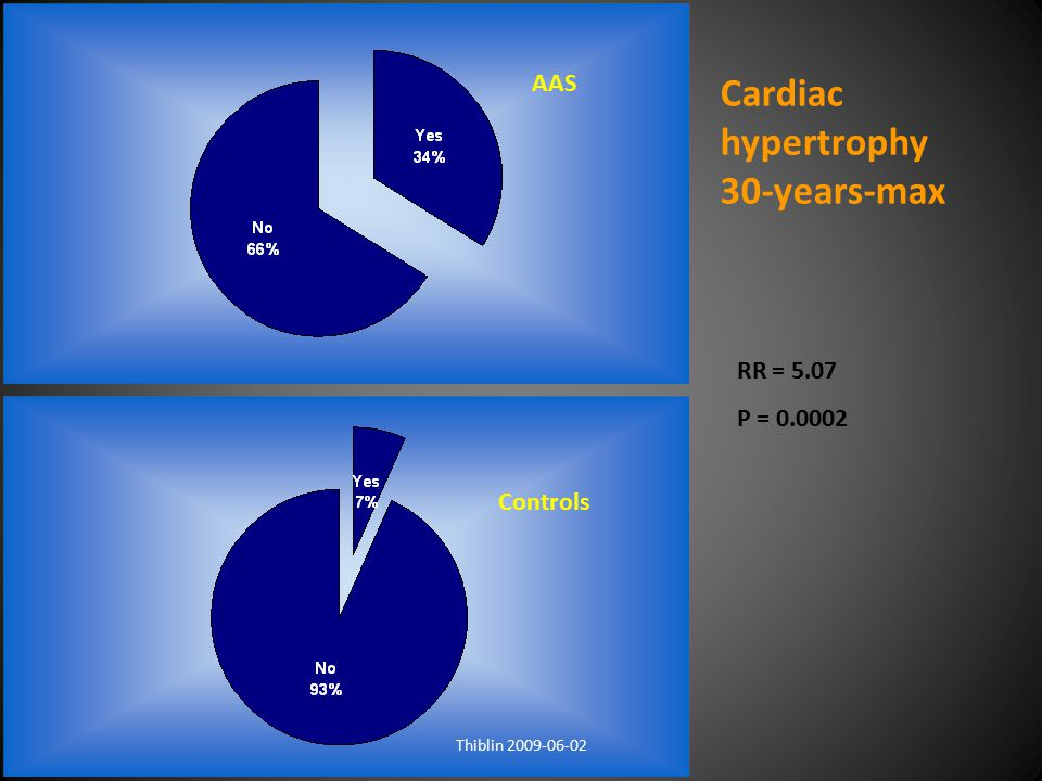 Cardiac hypertrophy 30-years-max