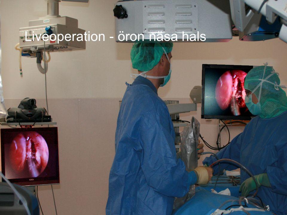 Liveoperation - öron näsa hals