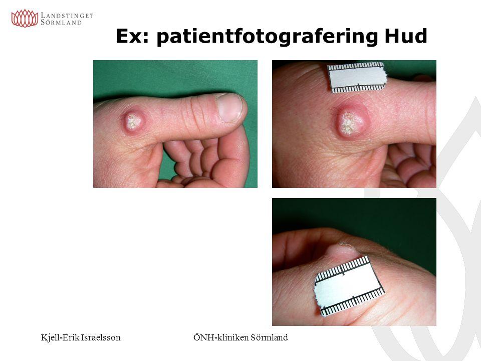 Ex: patientfotografering Hud