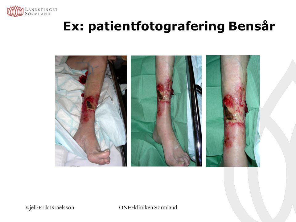 Ex: patientfotografering Bensår