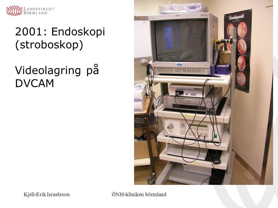 2001: Endoskopi (stroboskop) Videolagring på DVCAM
