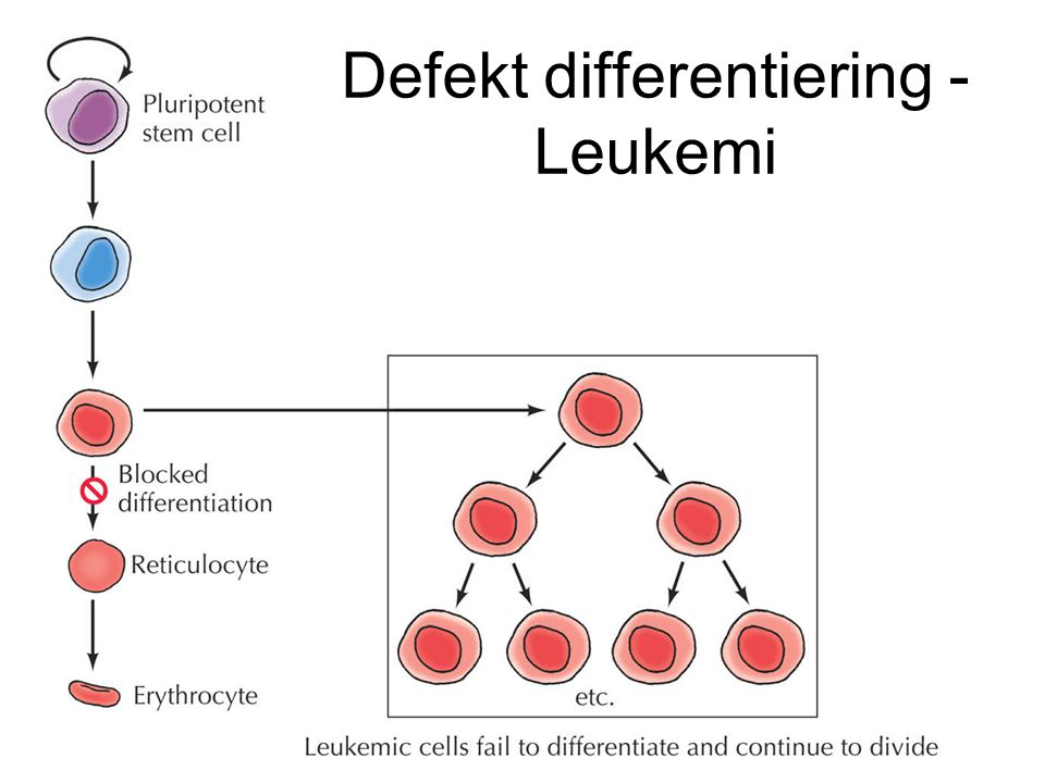 Defekt differentiering - Leukemi
