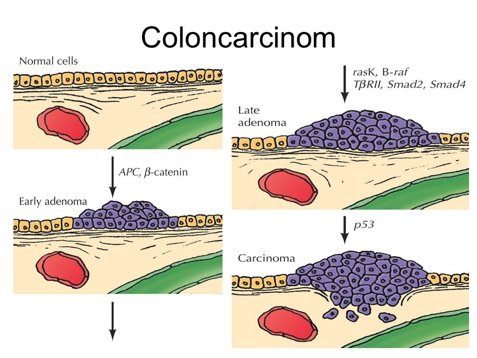 Coloncarcinom Figures_Hi-res\ch15\cell3e15401.jpg