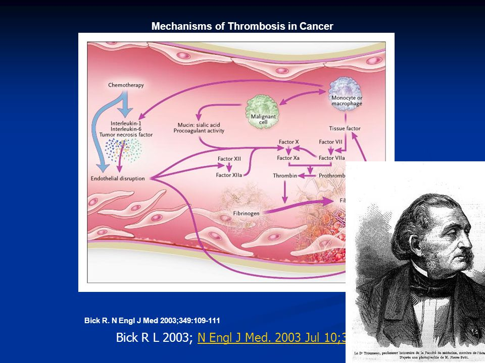 Mechanisms of Thrombosis in Cancer