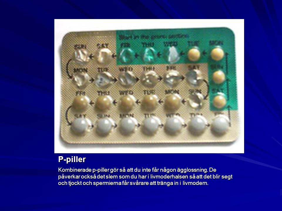 P-piller