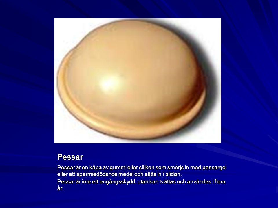 Pessar Pessar är en kåpa av gummi eller silikon som smörjs in med pessargel eller ett spermiedödande medel och sätts in i slidan.
