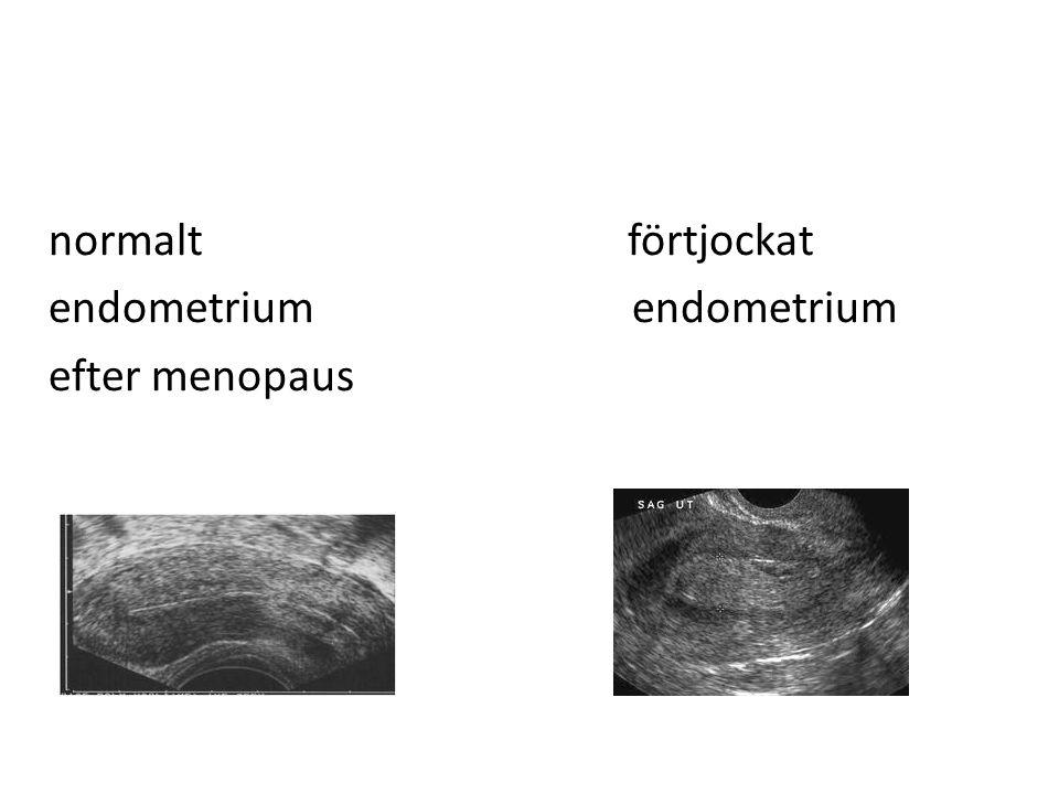 normalt förtjockat endometrium endometrium efter menopaus