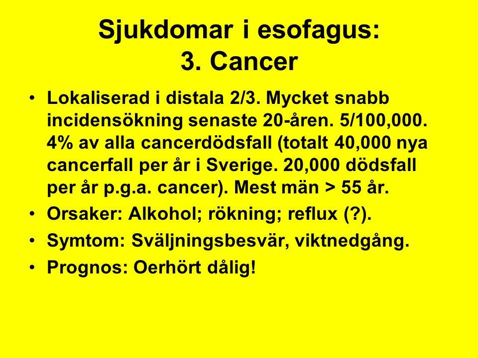 Sjukdomar i esofagus: 3. Cancer