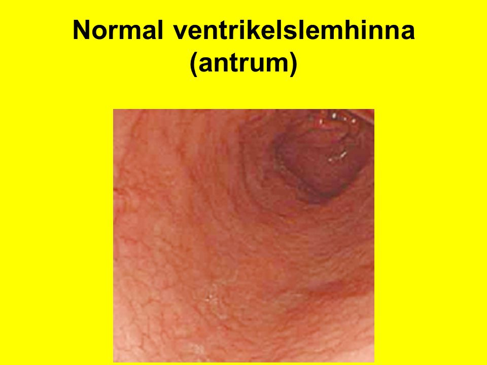 Normal ventrikelslemhinna (antrum)
