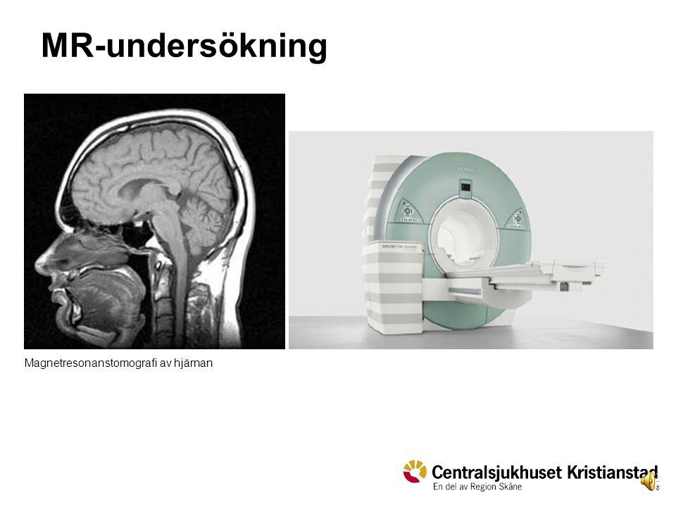 MR-undersökning Magnetresonanstomografi av hjärnan