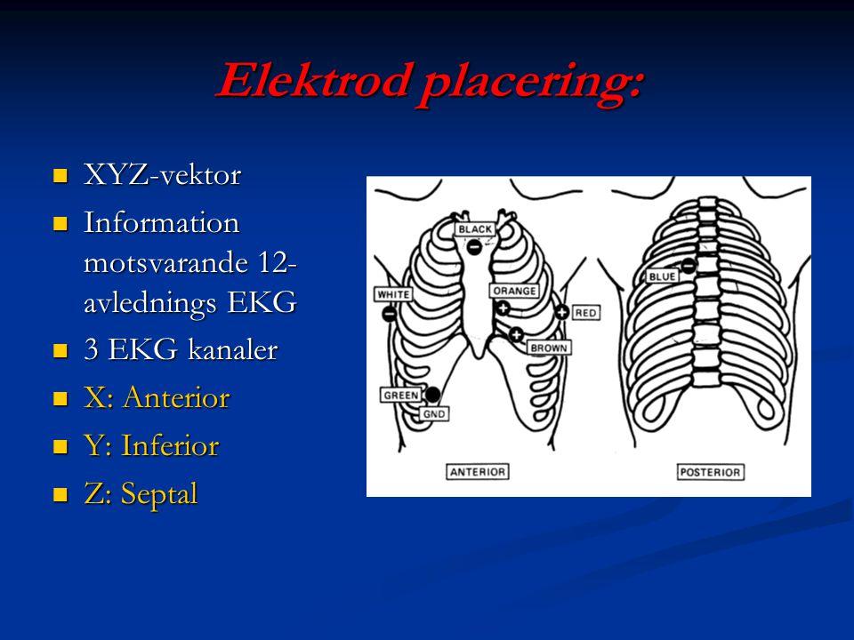 Elektrod placering: XYZ-vektor