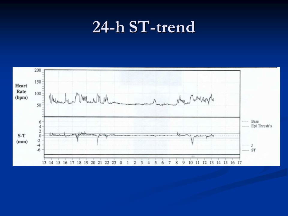 24-h ST-trend
