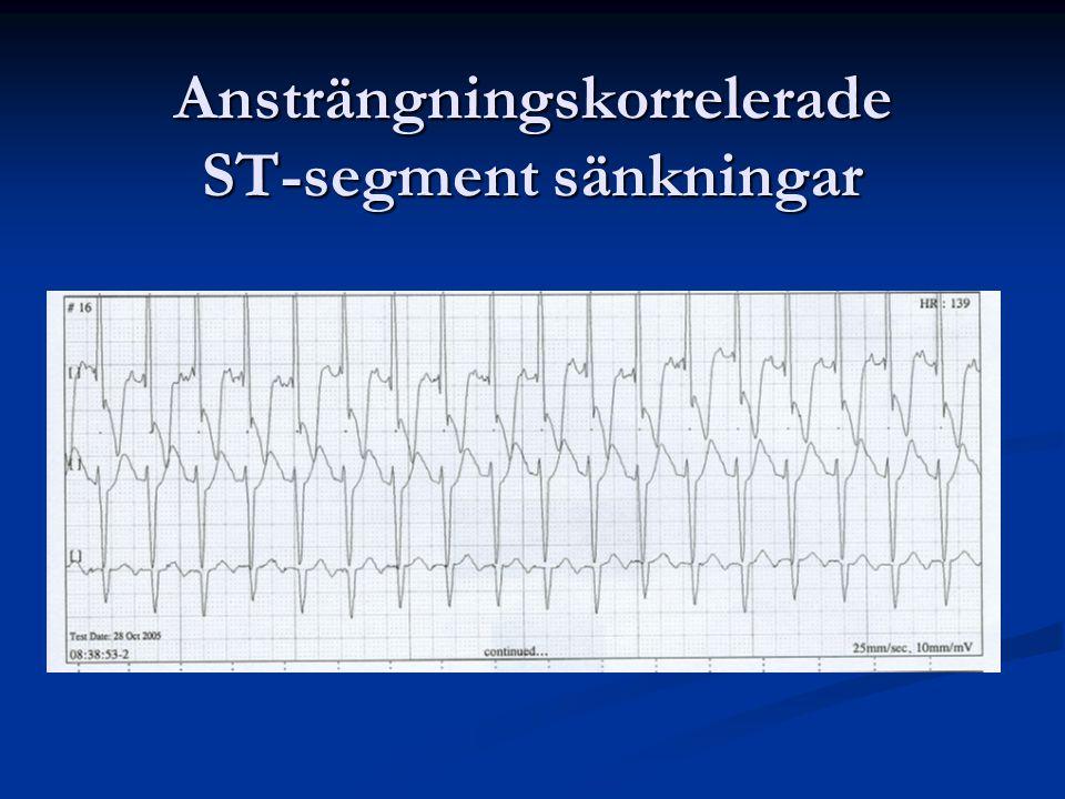 Ansträngningskorrelerade ST-segment sänkningar