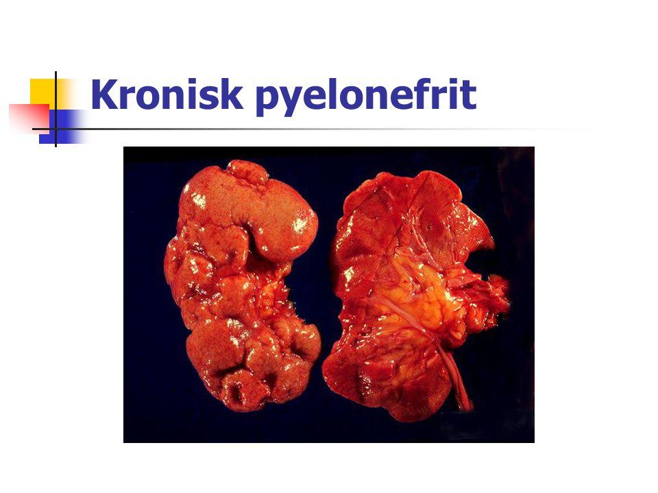 Kronisk pyelonefrit