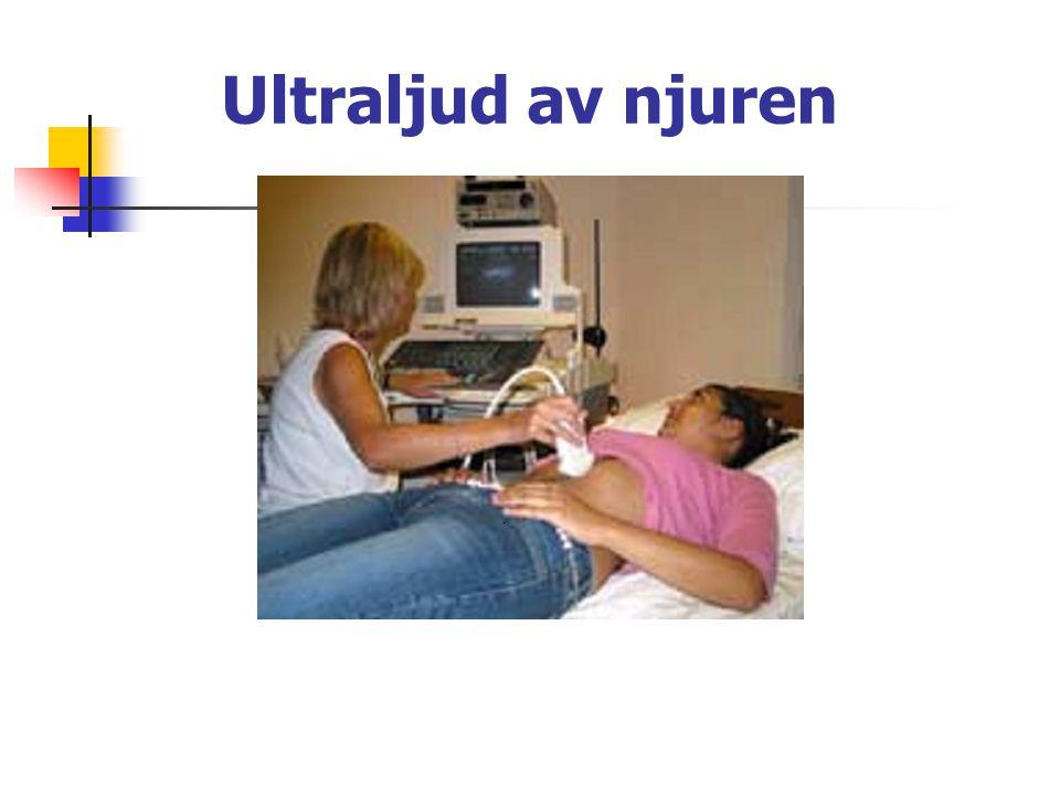 Ultraljud av njuren