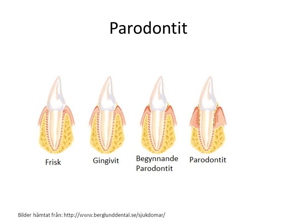 Parodontit Bilder hämtat från: http://www.berglunddental.se/sjukdomar/