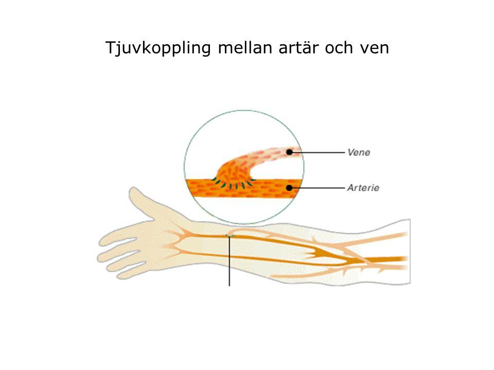 Tjuvkoppling mellan artär och ven
