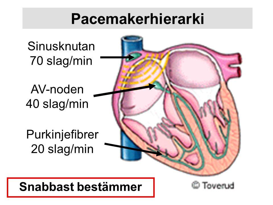 Pacemakerhierarki Sinusknutan 70 slag/min AV-noden 40 slag/min