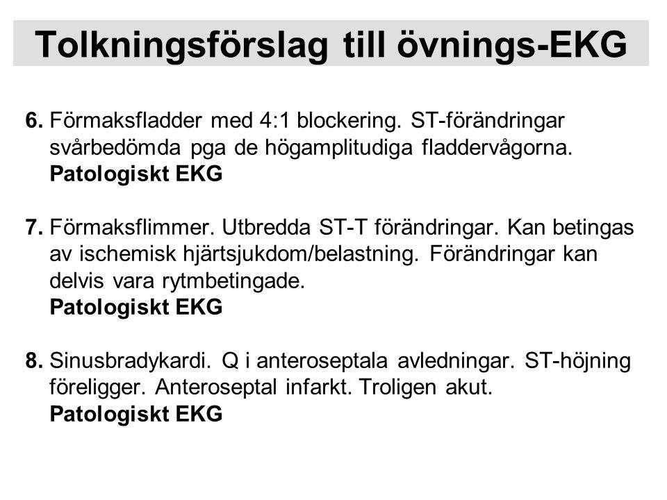 Tolkningsförslag till övnings-EKG