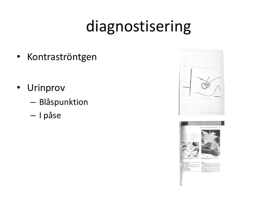 diagnostisering Kontraströntgen Urinprov Blåspunktion I påse