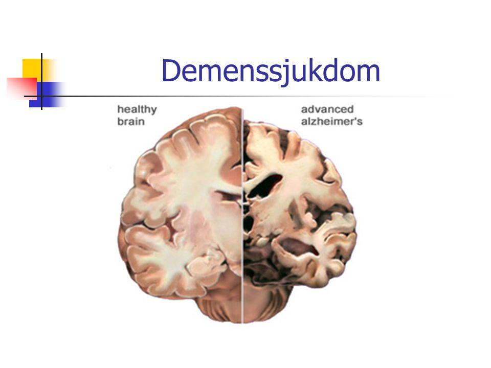 Demenssjukdom Basal utredning ska göras inom primärvården, görs i olika utsträckning.