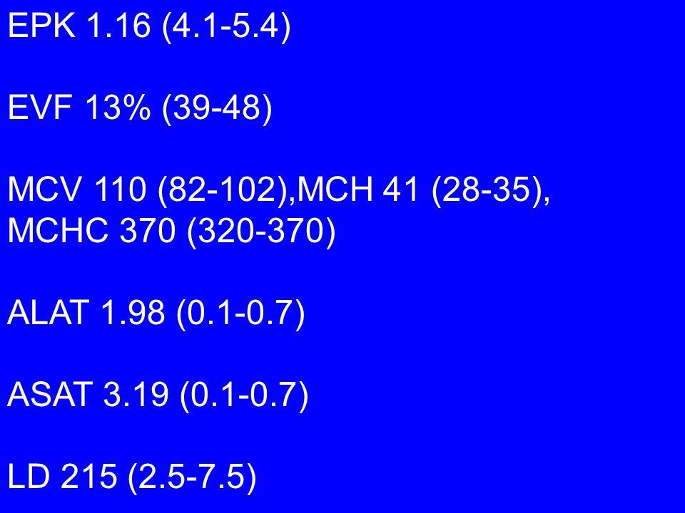 EPK 1.16 (4.1-5.4) EVF 13% (39-48) MCV 110 (82-102),MCH 41 (28-35), MCHC 370 (320-370) ALAT 1.98 (0.1-0.7)