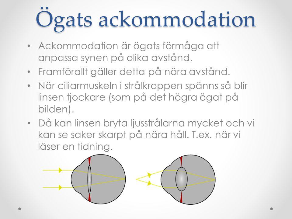 Ögats ackommodation Ackommodation är ögats förmåga att anpassa synen på olika avstånd. Framförallt gäller detta på nära avstånd.