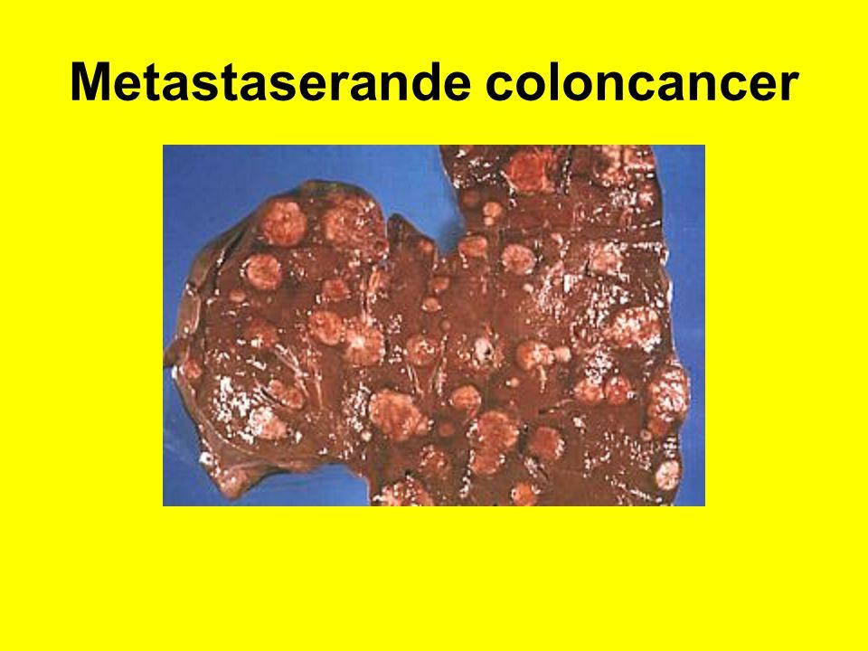 Metastaserande coloncancer