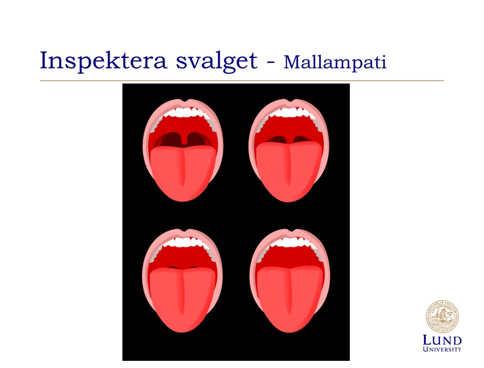 Inspektera svalget - Mallampati