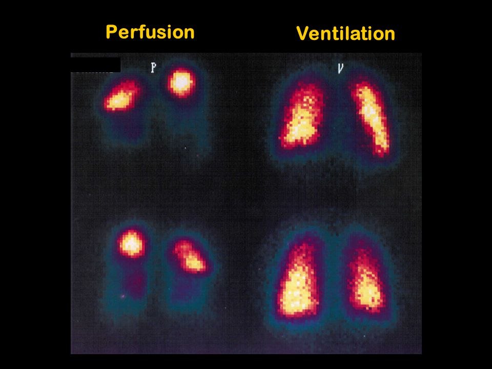 Perfusion Ventilation