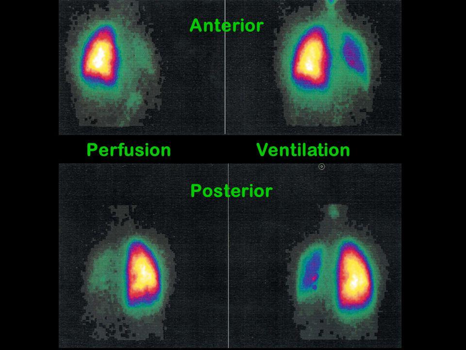 Anterior Perfusion Ventilation Posterior