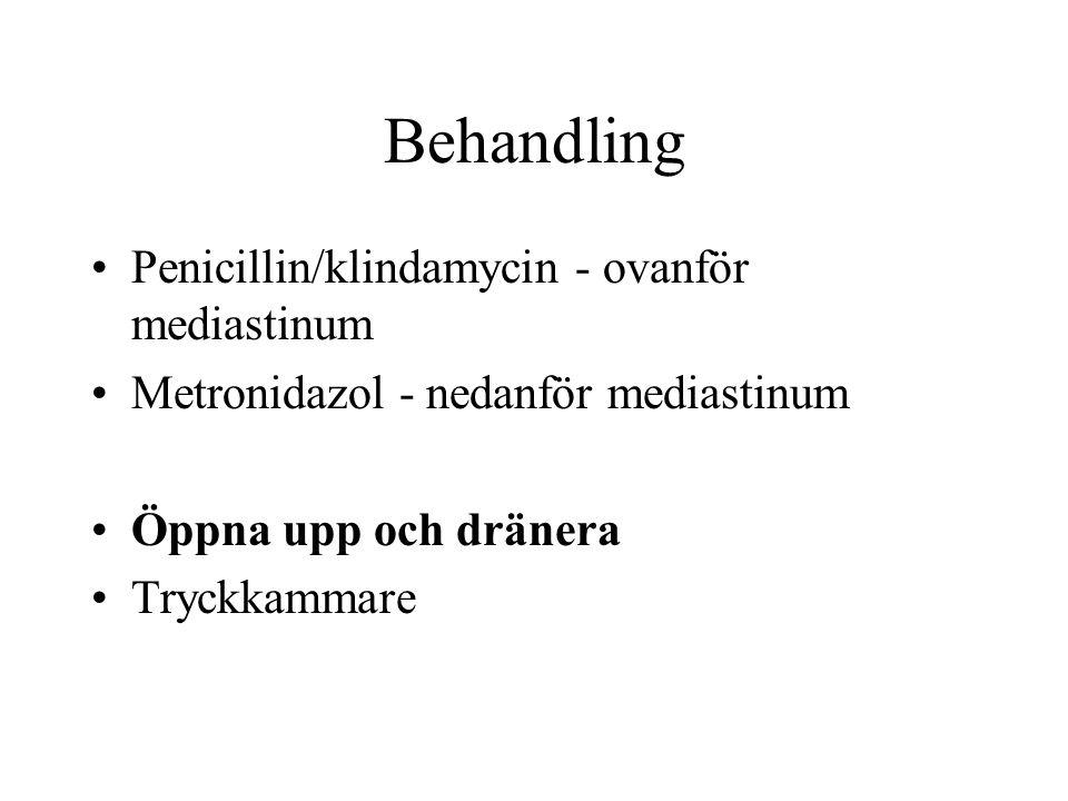 Behandling Penicillin/klindamycin - ovanför mediastinum