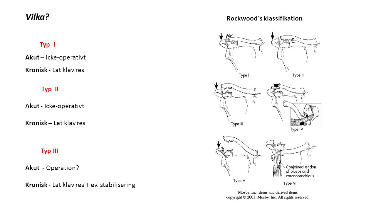 Vilka Rockwood`s klassifikation Typ I Akut – Icke-operativt