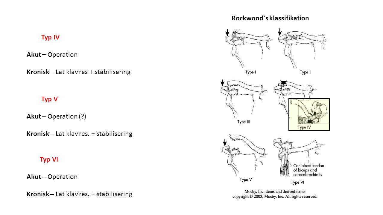 Rockwood`s klassifikation