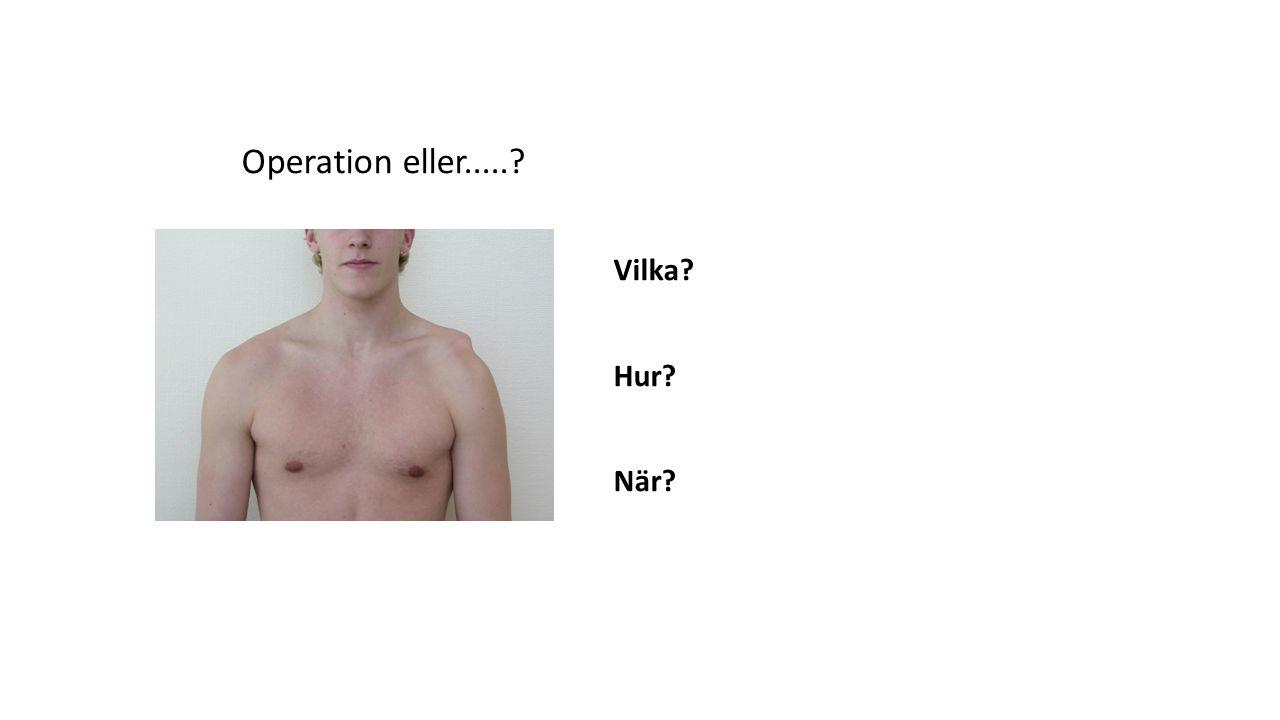 Operation eller..... Vilka Hur När