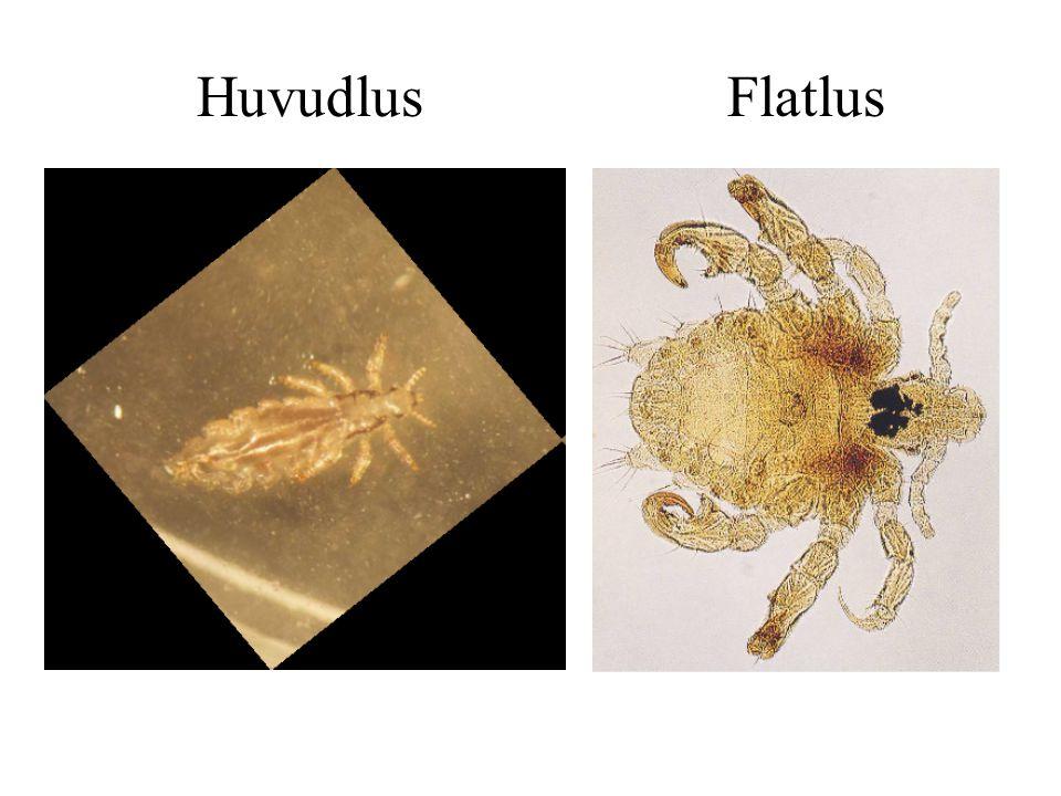 Huvudlus Flatlus