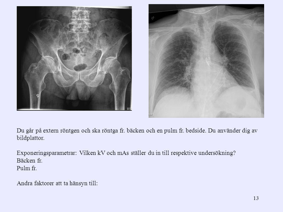 Du går på extern röntgen och ska röntga fr. bäcken och en pulm fr