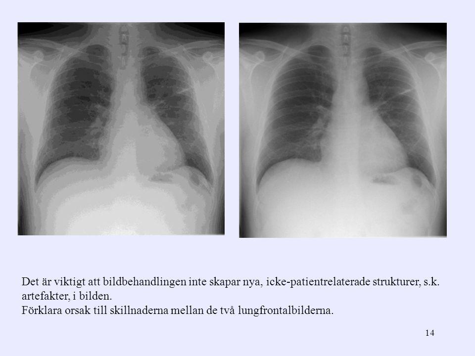 Det är viktigt att bildbehandlingen inte skapar nya, icke-patientrelaterade strukturer, s.k. artefakter, i bilden.