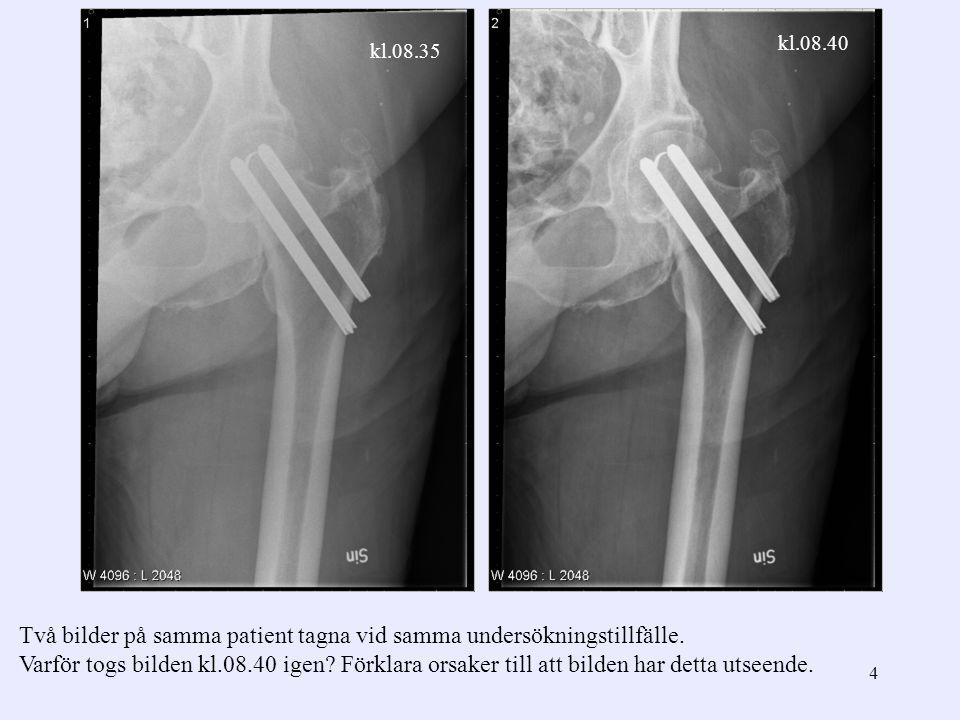 Två bilder på samma patient tagna vid samma undersökningstillfälle.